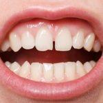 歯ぐきの色を改善したい