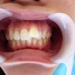 歯並びを気にされていた患者様