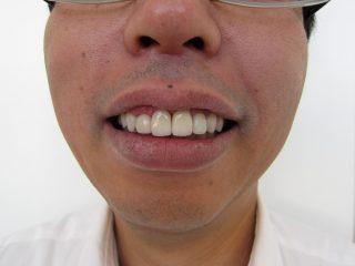 歯の色の悩み