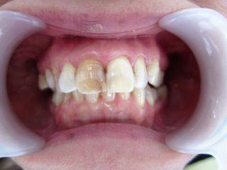 神経の死んだ歯の変色