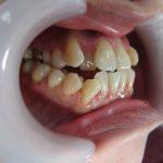 受け口・歯並びの治療